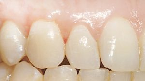 microcirugia dental despues
