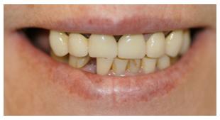 periodoncia en valladolid antes