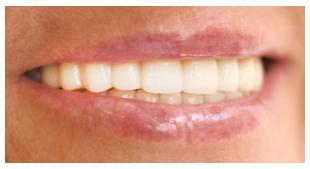 periodoncia en valladolid despues