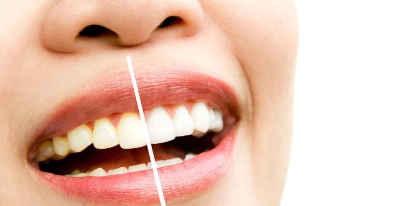 Blanqueamiento dental casero ¿Funcionan realmente?